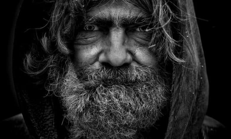 גבר עם קשקשים בזקן