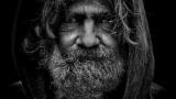קשקשים בזקן – זה באמת קיים! אז איך מטפלים בזה?